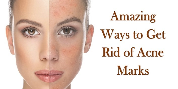 how to get rid of acne marks on face