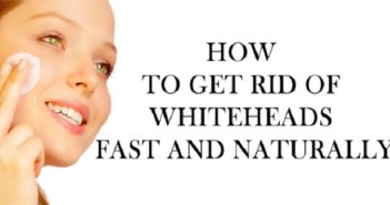 How-to-Get-Rid-of-Whiteheads-Using-Apple-Cider-Vinegar-cover