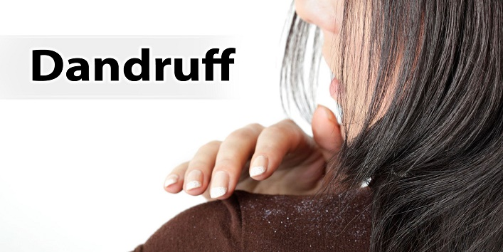 You have dandruff