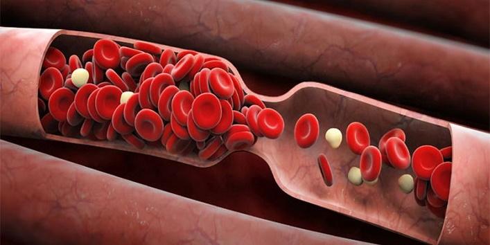 Prevents Blood clot