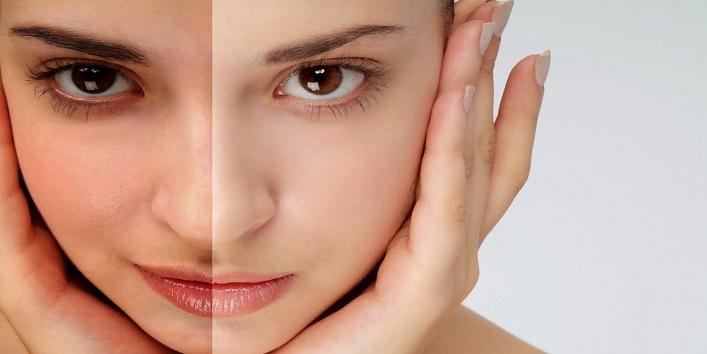 Helps in skin whitening