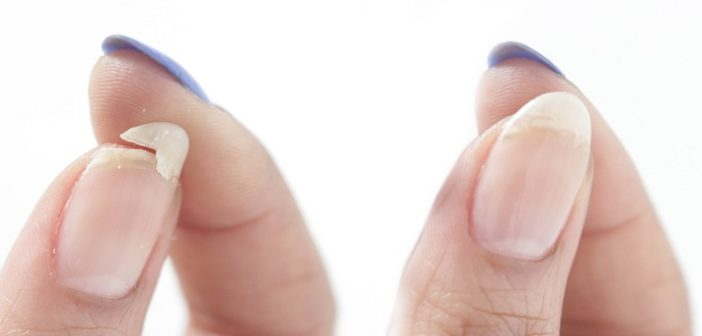 Top 6 Tips to Get Rid of Chipped Nails