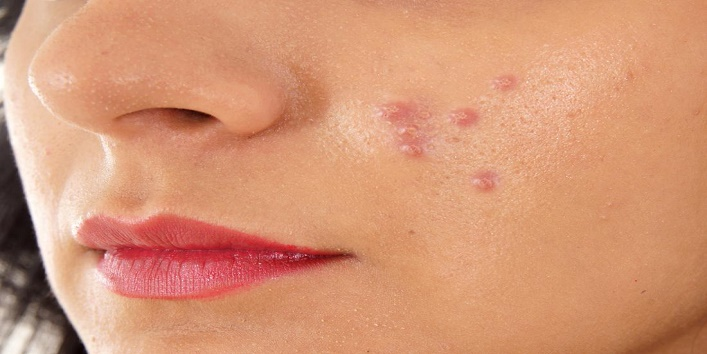 Treat acne scars and pimples