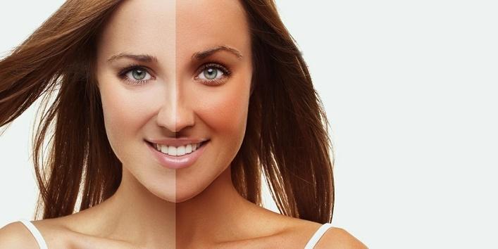 Get rid of tan