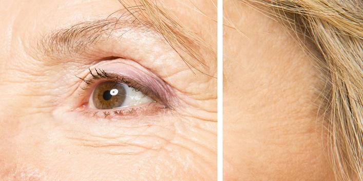 Helps in reducing wrinkles
